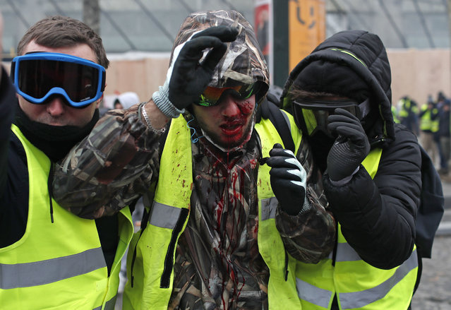 "A demonstrator wearing a yellow vest is covered in blood after getting in injured during a protest in Paris, Saturday, December 8, 2018. Prized Paris monuments and normally bustling shopping meccas locked down and tens of thousands of police took position around France. Macron's government warned that Saturday's ""yellow vest"" protests in Paris will be hijacked by ""radicalized and rebellious"" crowds and become the most dangerous yet after three weeks of demonstrations. (Photo by Thibault Camus/AP Photo)"