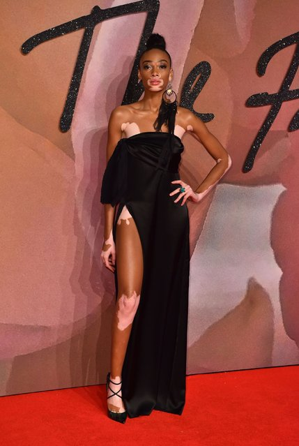 Model Winnie Harlow attends The Fashion Awards 2016 on December 5, 2016 in London, United Kingdom. (Photo by PA Wire)
