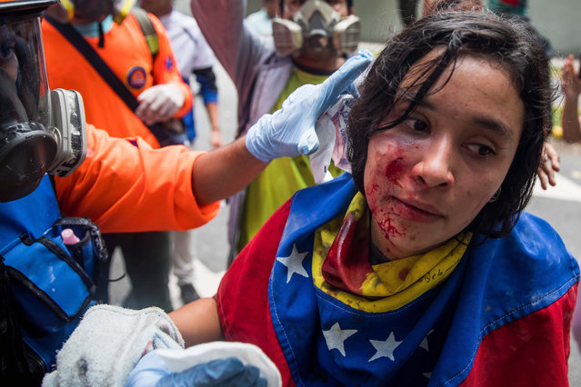 An injured protester receives a medical treatment during a student march, in Caracas, Venezuela, 21 November 2018. The Bolivarian National Police used tear gas to prevent a march of university students, who with the support of the rest of civil society, claim the crisis in the country has affected higher education institutions. The demonstrators were trying to leave the Central University of Venezuela (UCV) in the center of Caracas, where they had previously gathered to discuss the problems of the educational centers, but the PNB officials blocked the exits of the institution with police fences. (Photo by Miguel Gutiérrez/EPA/EFE)