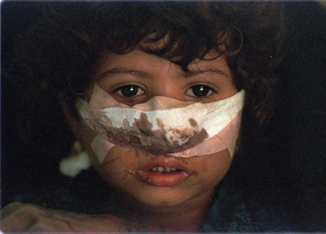 """Salma Karim, 4, awaits a medical examination and diagnosis at the Saddam Children's Hospital in Baghdad Monday, September 16, 1996. Due to the international economic blockade, Iraqi hospitals have little medicine and many curable illnesses go untreated. The United States has blocked a U.N. resolution allowing food and medicine in exchange for Iraqi oil. On Aug. 31, Saddam Hussein sent soldiers into the U.S.-protected Kurdish """"safe haven"""" in northern Iraq to oust an Iranian-backed faction in favor of another Kurdish group allied with Baghdad. (Photo by John Moore/AP Photo)"""