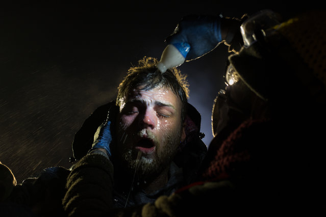 A handout photo made available by the World Press Photo (WPP) organization on 13 February 2017 shows a picture by Canadian photographer Amber Bracken that won the Contemporary Issues – First Prize, Stories award of the 60th annual World Press Photo Contest, it was announced by the WPP Foundation in Amsterdam, The Netherlands on 13 February 2017. Caption: A man is treated with milk of magnesia after being pepper sprayed by police at the blockade on highway 1806. White people have joined the camps in large numbers, often standing in front of indigenous protestors to shield them with their bodies. Story: For nearly 10 months, members of the Standing Rock Sioux tribe and their allies camped out in opposition to the Dakota Access Pipeline crossing their territory and threatening their water supply. The estimated 3.78 billion US dollar project, backed by Energy Transfer Partners, is nearly complete, covering almost 1,172 miles. In military vehicles and body armor, police used tear gas, pepper spray, rubber bullets, and water cannons against the protesters, and have been accused of inhumane treatment of arrestees. (Photo by Amber Bracken/EPA/World Press Photo)