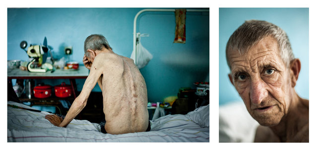 """""""Michael, 63 years old. Diagnosis: Multi-drug-resistant tuberculosis (MDR TB), in Kherson TB hospital, on July 19, 2011. He worked as a bricklayer on a construction site. After stomach surgery, he went for a check-up, and a doctor found spots on his lungs. After this he was sent immediately to a clinic, where he has been receiving treatment off and on since 1983. In 1995, the World Health Organization declared a tuberculosis epidemic in Ukraine. Over the past 16 years, the situation has deteriorated even further"""". (Photo and comment by Maxim Dondyuk, Ukraine/2013 Sony World Photography Awards"""