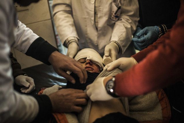 Yousuf Odey, 10, who was wounded in the eye by Islamic State militants, is treated by doctors at a clinic in Zahra district in Mosul, Iraq, Wednesday, December 7, 2016. A senior Iraqi commander says special forces captured a new neighborhood from Islamic State militants in eastern Mosul, the latest gain in a massive government military operation now in its seventh week. (Photo by Manu Brabo/AP Photo)