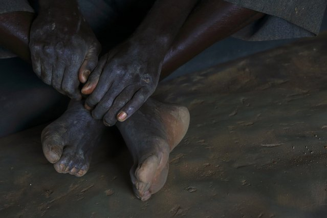 HIV-positive 71-year-old Sylverio Hachiploa sits cross-legged during a visit by a home-based care team in the village of Nedwmba, south of the Chikuni Mission in the south of Zambia February 23, 2015. (Photo by Darrin Zammit Lupi/Reuters)