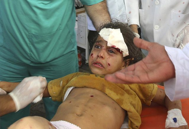 Palestinian medics treat a girl, who they said was wounded by an Israeli air strike, at a hospital in Rafah in the southern Gaza Strip August 2, 2014. (Photo by Ibraheem Abu Mustafa/Reuters)