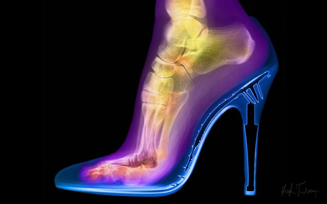 An x-ray of a foot in a stiletto, taken by British artist and photographer Hugh Turvey in London, England. (Photo by Hugh Turvey/SPL/Barcroft Media)