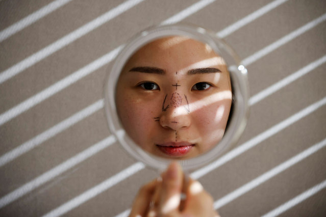 Ryu Han-na poses for photographs before undergoing nose plastic surgery at WooAhIn Plastic Surgery Clinic in Seoul, South Korea, December 17, 2020. (Photo by Kim Hong-Ji/Reuters)