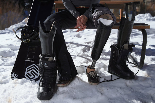 Amy Purdy prepares to swap her prosthetic legs for a training session on December 16, 2013 in Copper Mountain, Colorado. (Photo by Doug Pensinger/Getty Images)