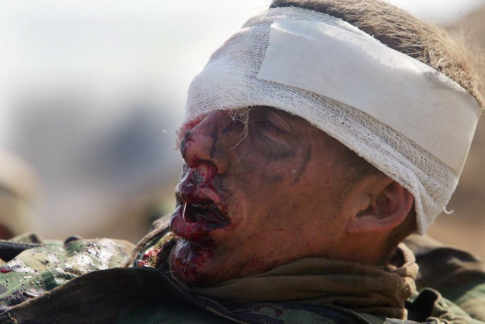 Iraq War's 10th Anniversary (100 Photos)