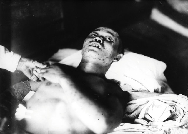 A 21-year-old soldier, who was exposed to the atomic bombing of Hiroshima on August 6, 1945, and has purple subcutaneous hemorrhage spots on his body, is treated at the Ujina Branch of the Hiroshima First Army Hospital in Hiroshima prefecture, Japan, in this handout photo taken by Gonichi Kimura on September 3, 1945 and released by the Hiroshima Peace Memorial Museum. (Photo by Gonichi Kimura/Reuters/Hiroshima Peace Memorial Museum)
