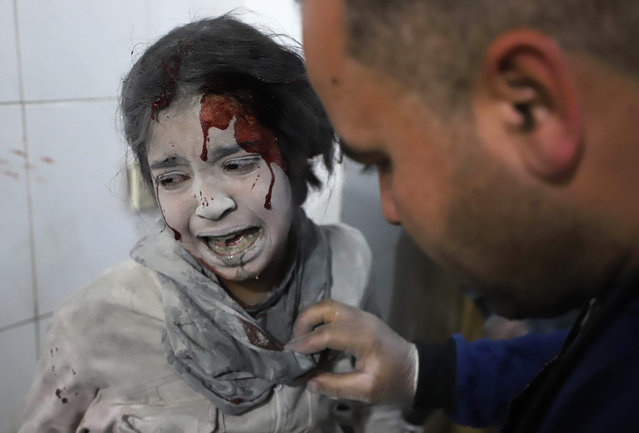 A Syrian girl receives treatment as victims of reported regime air strikes on Hamouria, Saqba and Kafr Batna are brought to a make-shift hospital in the rebel-held enclave of Eastern Ghouta on March 7, 2018. (Photo by Amer Almohibany/AFP Photo)