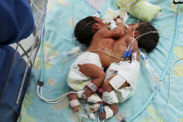 Three-day old female conjoined twins Milena Alexandra and Emily are seen at the National Child Institute hospital in Lima April 24, 2015. The twins, joined by the thorax and currently in stable condition, arrived today to Peru's capital from the northern city of Trujillo to be subjected to a possible surgical intervention in coming days with the purpose of separating their bodies, according to the Peruvian Health Ministry. (Photo by Jorge Bartra/Reuters/Peru's Health Ministry)