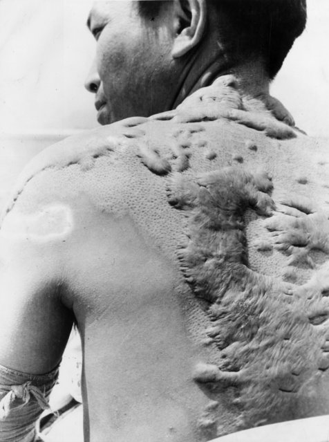 A victim of the atomic bombing of Hiroshima. (Photo by Keystone/Getty Images)