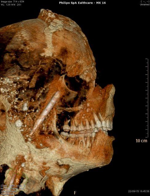 epa04955763 Archaeological Superintendence Press Office on 29 September 2015 shows a Cat scan (Computerized axial tomography) of the cast from one of the victims of the eruption of Vesuvius in 79 AD in Pompeii, in Naples, Italy. (Photo by Cesare Abbate/EPA)