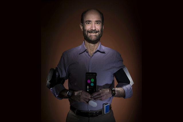 """In this photo provided by Steve Fisch, Michael Snyder, professor and chair of genetics at the Stanford University School of Medicine sports wearable gadgets. Wearable gadgets gave a Snyder an early warning that he was getting sick before he ever felt any symptoms of Lyme disease. Interest in wearable sensors is growing along with efforts to personalize medicine, as scientists learn how to tailor treatments and preventive care to people's genes, environment and lifestyle. The sensors are expected to be a part of the National Institutes of Health's huge """"precision medicine"""" study, planned to begin later this year. (Photo by Steve Fisch via AP Photo)"""