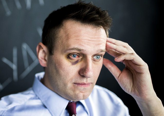 Russian opposition leader Alexei Navalny sits in his office in Moscow, Russia, Thursday, May 11, 2017. Russian opposition leader Alexei Navalny says that he has undergone eye surgery in Spain after being attacked last month. Navalny suffered a severe chemical burn in his right eye last month when an attacker doused him with green antiseptic. (Photo by Evgeny Feldman/Pool Photo via AP Photo)