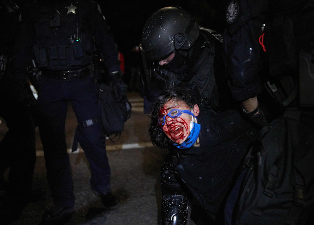 A policeman arrests a protestor injured in the face and bleeding in Portland, on September 4, 2020 during a march to denounce police brutality and racism. Portland this weekend marks 100 days since protests erupted in the western US city to denounce police brutality and racism, shining a spotlight on a deeply polarized America as it prepares for high-stakes elections. The nightly protests, sparked by the death of an African American while in police custody in Minneapolis in May, escalated sharply in the Oregon city after the administration deployed federal agents to protect federal property from damage. (Photo by Allison Dinner/AFP Photo)