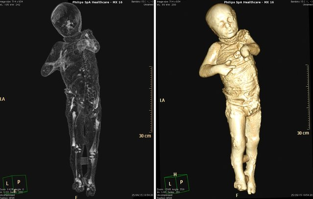 A combination photograph shows a CAT (Computerised Axial Tomography) scan of an ancient Roman boy believed to be four years old and his skeletal make-up in Pompeii in this September 25, 2015 handout. (Photo by Ercolano e Stabia/Reuters/Press Office of Soprintendenza Speciale per Pompei)