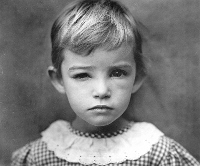 Damaged Child, 1984. (Photo by Sally Mann)