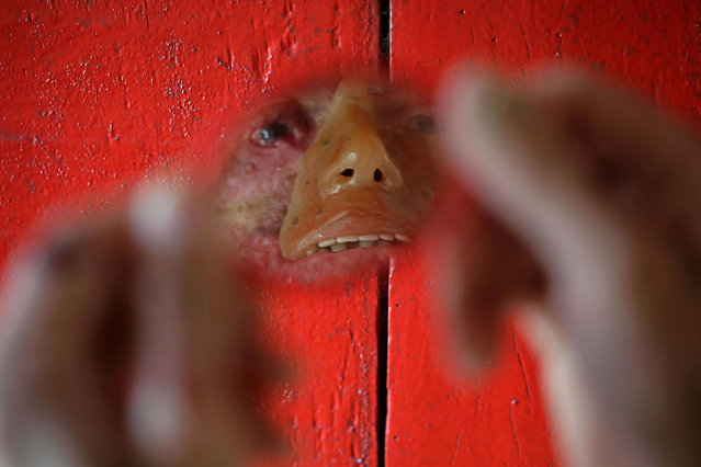 "In this March 3, 2014 file photo, Djalma Antonio Jardim, who has a rare inherited skin disease known as xeroderma pigmentosum, or ""XP"", looks in a a mirror at his home in the Araras community of Brazil's Goias state. In an effort to camouflage how the disease has eaten away the skin on his lips, nose, cheeks and eyes, Jardim wears a rudimentary orange-tinted mask, its stenciled-in right eyebrow not matching his bushy real one that remains. (Photo by Eraldo Peres/AP Photo)"