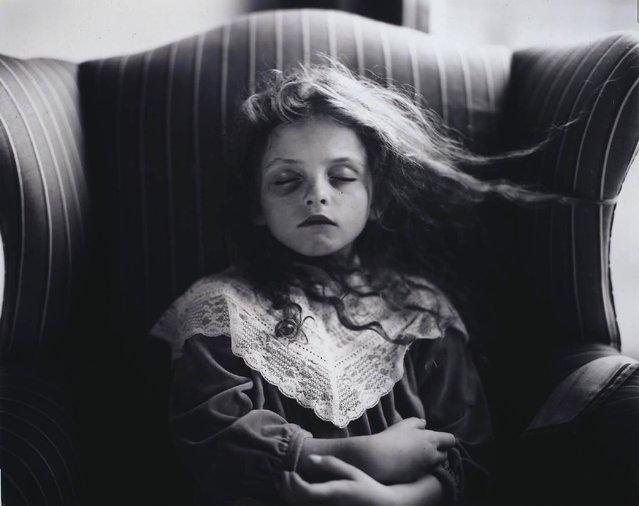 Black Eye, 1991. (Photo by Sally Mann)