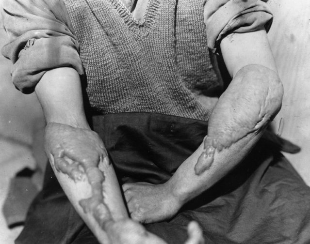 A victim of the American atomic bombing of Hiroshima, Japan, shows the burns on his arms, circa 1947. (Photo by Keystone/Getty Images)
