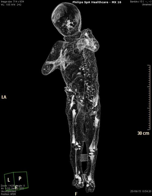 A handout image released by Pompeii's Archaeological Superintendence Press Office on 29 September 2015 shows a Cat scan (Computerized axial tomography) of the cast from one of the victims of the eruption of Vesuvius in 79 AD in Pompeii, in Naples, Italy. (Photo by Cesare Abbate/EPA)