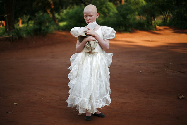 """Visually Impaired Malawian Albino Girl Stands In The Dusty Road"". In the dusty road, wearing a beautiful white dress stands a timid little albino girl. Clutching hat and paper she remains quietly still. Afternoon light seeps through trees making her glow angelically. Visually impaired she lives in Malingunde Village attending school at the Special Needs Education Resource Centre along with other such challenged Malawian children. Location: Special Needs Education Resource Centre, Malingunde Village, Malawi, Africa. (Photo and caption by Mark Wessels/National Geographic Traveler Photo Contest)"