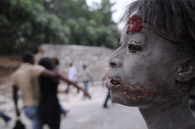 An injured person is seen after an earthquake hit Port-au-Prince, Haiti, Tuesday, January 12, 2010. A 7.0-magnitude earthquake, the largest ever recorded in the area, rocked Haiti on Tuesday. (Photo by Jorge Cruz/AP Photo)