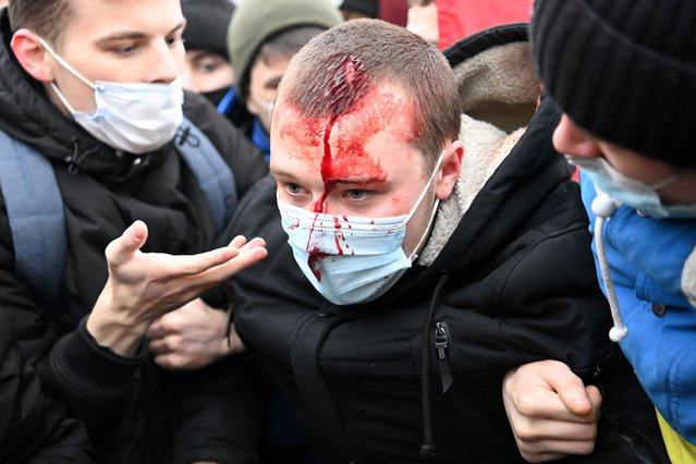 An injured man is helped by other protesters during a rally in support of jailed opposition leader Alexei Navalny in downtown Moscow on January 23, 2021. Navalny, 44, was detained last Sunday upon returning to Moscow after five months in Germany recovering from a near-fatal poisoning with a nerve agent and later jailed for 30 days while awaiting trial for violating a suspended sentence he was handed in 2014. (Photo by Kirill Kudryavtsev/AFP Photo)