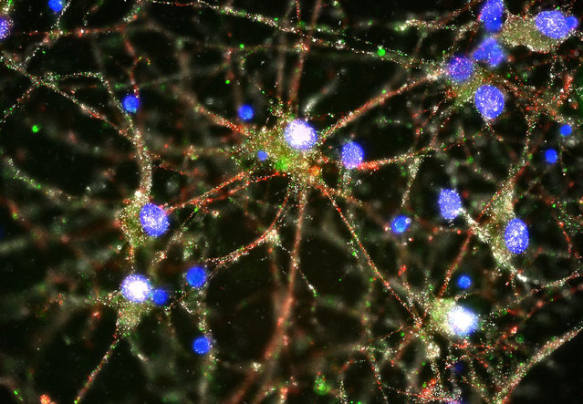 This image provided by Heather de Rivera and made with a fluorescent microscope shows C4 proteins, green, located at the synapses in a culture of human neurons. In research released on Wednesday, January 27, 2016, scientists pursuing the biological roots of schizophrenia have zeroed in on a potential factor – a normal brain process that gets kicked into overdrive. The finding could someday lead to ways to treat the disease or even prevent it. (Photo by Heather de Rivera/McCarroll Lab/Harvard via AP Photo)