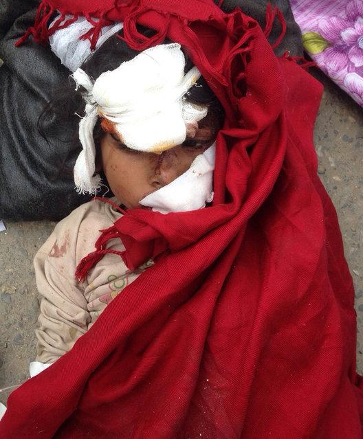 An injured child lies on the ground outside the Medicare Hospital in Kathmandu, Nepal, Saturday, April 25, 2015. (Photo by Niranjan Shrestha/AP Photo)