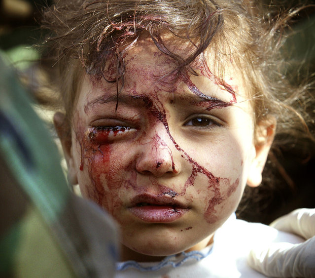 A wounded Iraqi girl is treated by U.S. marines in central Iraq, on March 29, 2003. The four-year old girl, blood streaming from an eye wound, was screaming for her dead mother, while her father, shot in a leg, begged to be freed from the plastic wrist cuffs slapped on him by U.S. marines, so he could hug his other terrified daughter. (Photo by Damir Sagolj/Reuters/The Atlantic)