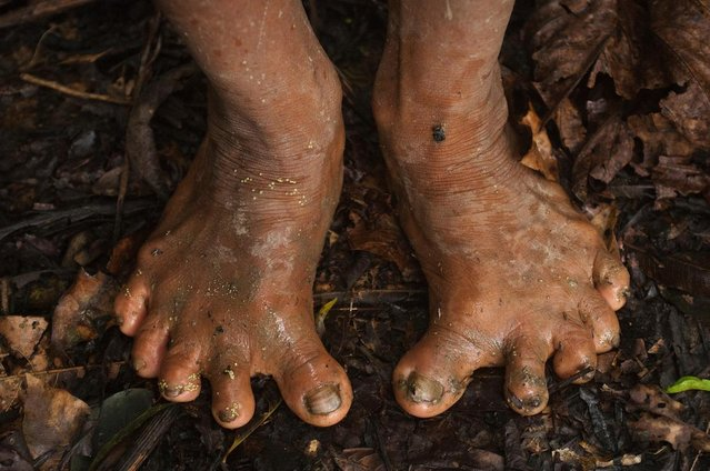 One member of the tribe appeared to have deformed feet. (Photo by Pete Oxford/Mediadrumworld.com)