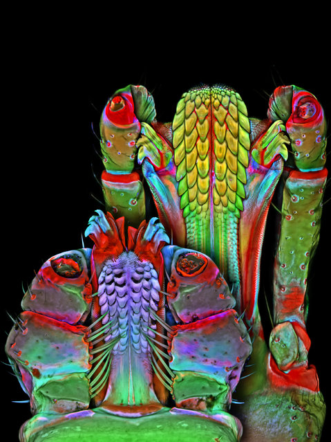 Underside of the Brown dog tick and Lonestar tick mouthparts; Confocal, 100X. Janelia Farm Research Campus, Howard Hughes Medical Institute (HHMI), Ashburn, Virginia, USA. (Photo by Dr. Igor Robert Siwanowicz/Nikon Small World 2014)
