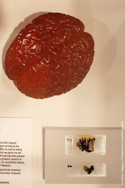 Slices of Albert Einstein's brain (bottom right) are displayed at the Wellcome trusts new 'Brains' exhibition