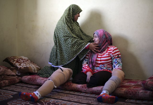Palestinian girl Manar Al-Shinbari (R), 15, who lost her both legs by what medics said was Israeli shelling at a UN-run school where she was taking refuge during the 50-day war last summer, is helped by her sister to put on her headscarf in an apartment in Jabaliya refugee camp in the northern Gaza Strip January 13, 2015. (Photo by Mohammed Salem/Reuters)