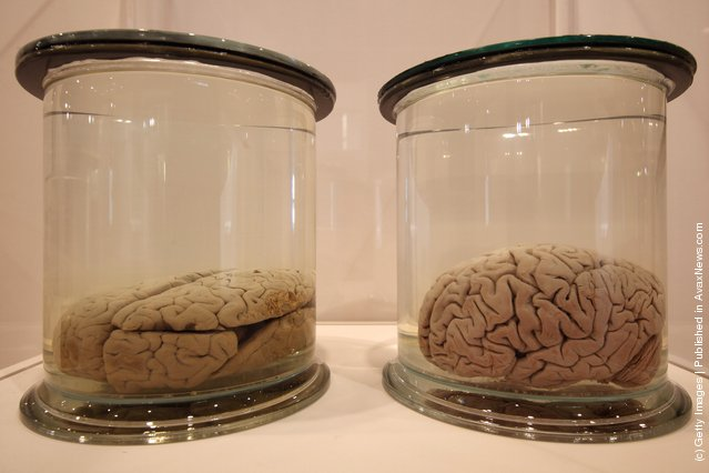 Preserved brains are displayed at the Wellcome trusts new 'Brains' exhibition at the Wellcome Collection