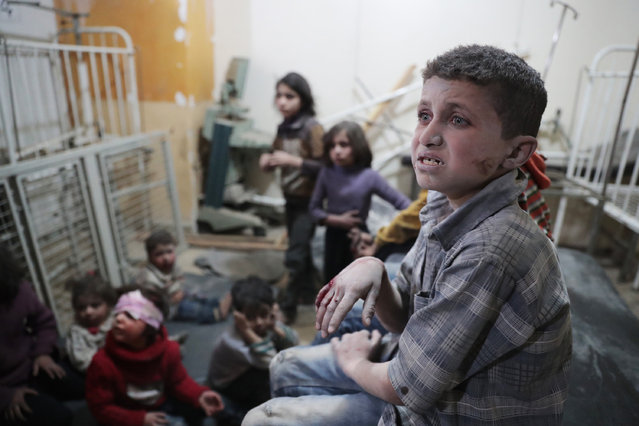 Syrian children wait to receive treatment at a makeshift clinic following reported air strikes by government forces in the rebel-held town of Douma, on the eastern outskirts of Damascus, on April 4, 2017. (Photo by Abd Doumany/AFP Photo)
