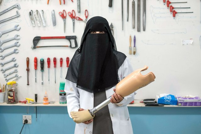 Fayda Ali Ali is pictured in a hospital in the Yemeni government-held town of Marib, more than 100 miles from the country's capital, Sana'a, on February 20, 2018. Ali is a nurse trained in prosthetics working on the orthopaedic ward. (Photo by Heathcliff O'Malley/The Guardian)