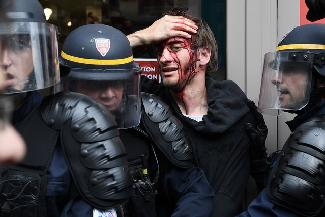 A man bleeds after being injured following clashes with French riot police during a demonstration against the controversial labour reforms of the French government in Paris on September 15, 2016. Opponents of France's controversial labour reforms took to the streets on September 15, 2016 for the 14th time in six months in a last-ditch bid to quash the measures that lost the Socialist government crucial support on the left. Scores of flights in and out of France were cancelled as air traffic controllers went on strike to try to force the government to repeal the changes that became law in July. (Photo by Christophe Archambault/AFP Photo)