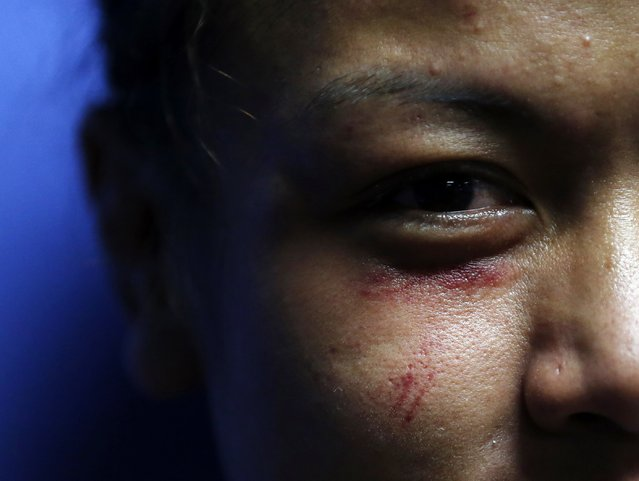 Malaysia's Ann Osman poses for a photograph after her mixed martial arts (MMA) ONE Championship fight against Egypt's Walaa Abbas in Kuala Lumpur, March 13, 2015. (Photo by Olivia Harris/Reuters)