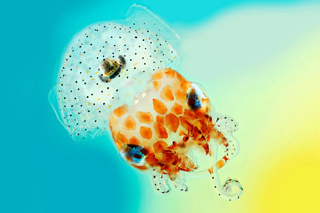 "With its huge eyes, comical name and diminutive size, Mark R. Smith's image of a baby Hawaiian bobtail squid can't help but raise a smile. A curiously endearing creature, the cephalopod is just 1.5cm across, its mantle cavity bearing more than a passing resemblance to a rather natty shower cap. But it is also a beautiful example of symbiosis – nature's version of ""I'll scratch your back if you scratch mine"" – for on the underside of the squid is a light organ which houses bioluminescent bacteria. The squid offers the bacteria protection and food, while the bacteria emit a glow – a handy trait that the squid uses to offset its silhouette, helping it to evade predators in the depths below. Mark R. Smith's entry combines several images of a Hawaiian bobtail squid with different focus lengths to create a final picture with greater depth of field than normal. (Photo by Mark R. Smith/Wellcome Images/Macroscopic Solutions)"