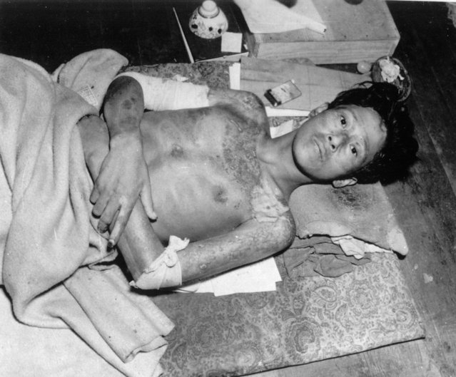 This young man, a victim of the second atomic bomb ever used in warfare, is seen as he is lying sick on a mat, in Nagasaki, in late 1945. The bombing killed more than 70,000 people instantly, with ten thousands dying later from effects of the radioactive fallout. (Photo by AP Photo)