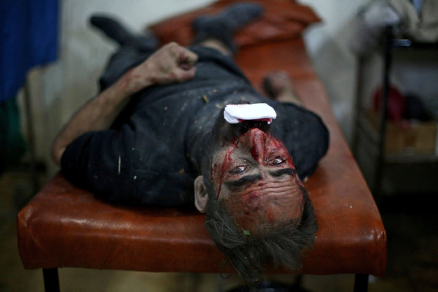 An injured Syrian man lies on a stretcher as he waits for treatment at a makeshift hospital in the rebel held area of Douma, north east of the capital Damascus, following reported air strikes by forces loyal to President Bashar al-Assad on February 2, 2015. (Photo by Abd Doumany/AFP Photo)