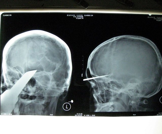 """Sword survivor: Obviously you'd take a sword with you when you go round to visit your mate... Zhang Bin, 15, was taken 400km to hospital with 5cm of a 50cm sword embedded in his head. He said later: """"Three classmates came to visit me at home and one of them brought a sword. He stood 3-4m away from me. I don't know how the sword could fly to me and stab into my head. I felt sharp pains and a large amount of blood streamed down"""". (Photo by Rex Features)"""