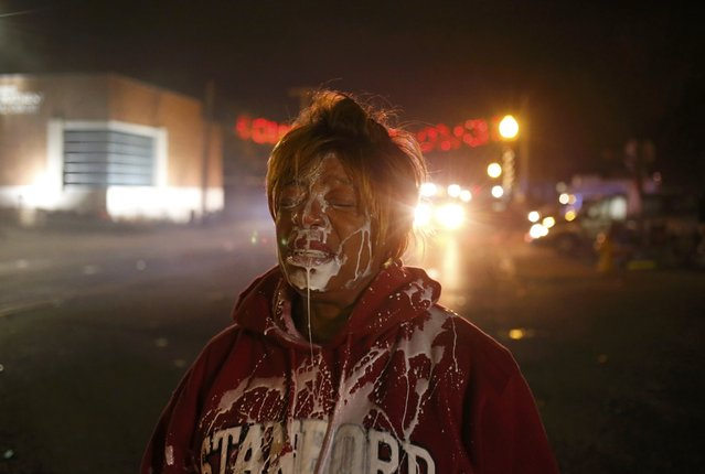 A protester stands in the street after being treated for tear gas exposure after a grand jury returned no indictment in the shooting of Michael Brown in Ferguson, Missouri, November 24, 2014. (Photo by Adrees Latif/Reuters)