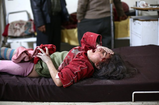 An injured Syrian girl receives treatment at a makeshift hospital in the rebel held area of Douma, north east of the capital Damascus, following reported air strikes by forces loyal to President Bashar al-Assad on February 3, 2015. More than 200,000 people have been killed in Syria since the conflict started, and around half of the country's population has been displaced. (Photo by Abed Doumani/AFP Photo)