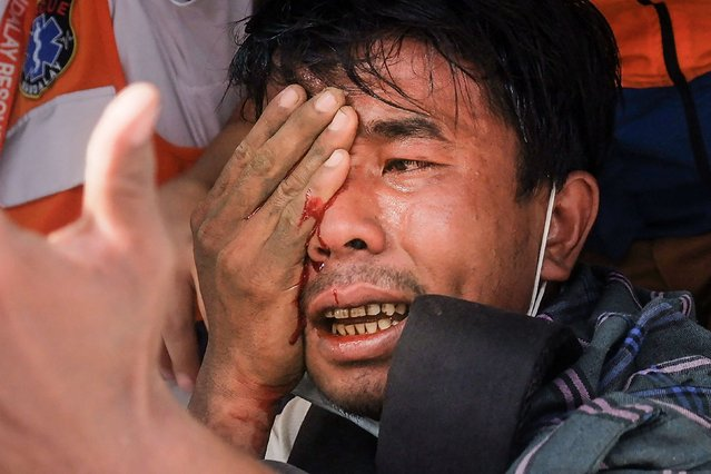 A wounded man injured in his eye after being hit with a slingshot fired by security forces reacts as he is treated by a medical team following a demonstration against the military coup in Mandalay on February 20, 2021. (Photo by AFP Photo/Stringer)