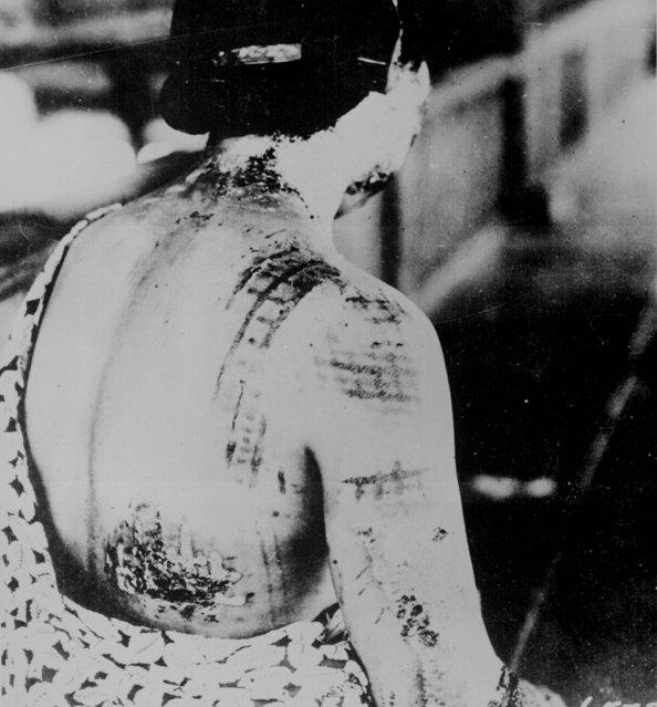 An atomic bomb victim reveals her wounds. Photograph, Hiroshima or Nagasaki, Japan, 1945. (Photo by Ullstein Bild/Ullstein Bild via Getty Images)
